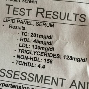 CVS lipid panel test reusults photo